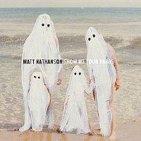 Matt Nathanson – Show Me Your Fangs